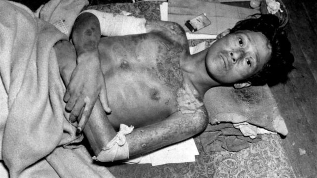 Un uomo dopo essere entrato in contatto con una sostanza radioattiva